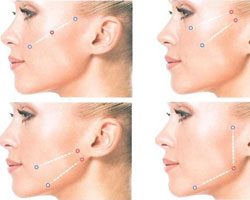 Thread Lift–nonsurgical face lift